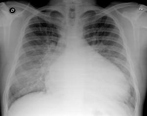 cardiomegalia-edema-pulmonar